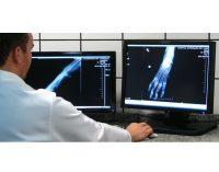 El hospital de Yecla tendrá un nuevo sistema de radiología digital